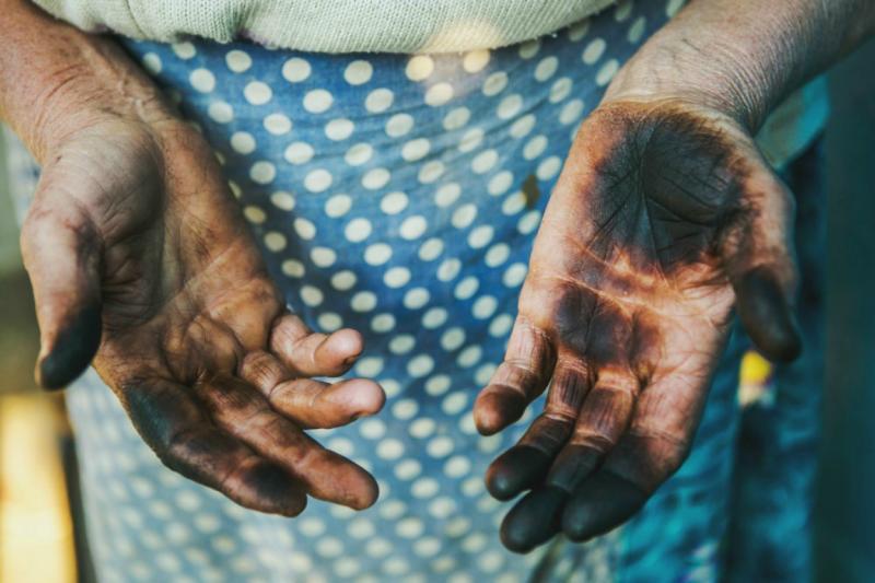 Пятна на руках от маслят
